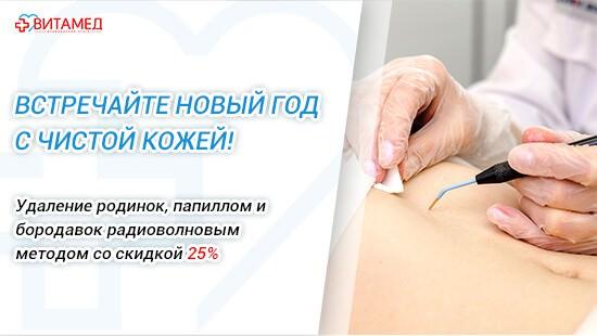 Удаление родинок, папиллом и бородавок радиоволновым методом со скидкой 25%